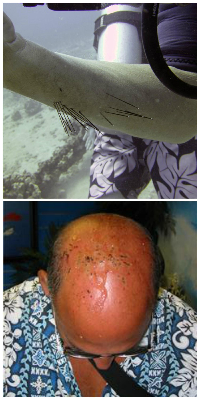 urchin spine injuries